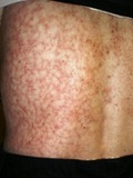 erythema-ab-igne-sm - image courtesy of The Dermatology Blog - http://thedermblog.com